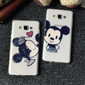 Unique Mickey Mouse Silicone Casers For Samsung Galaxy A7 A7009 - Black